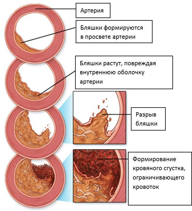 Лекарства дня снижения холестерина
