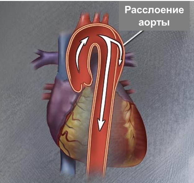 Расслоение коронарной артерии
