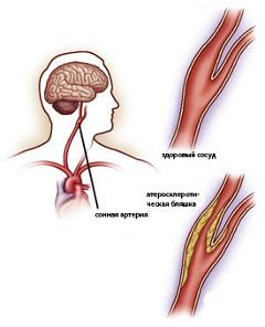 Стенозирующий атеросклероза внечерепных артерий головы