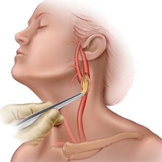 Сколько стоит операции при операции атеросклероза артерий