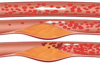 Результаты холестерина в крови